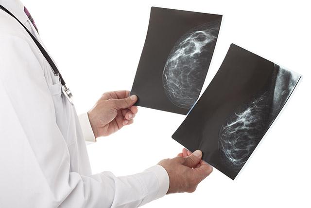 マンモグラフィー(乳房X線撮影検査)イメージ
