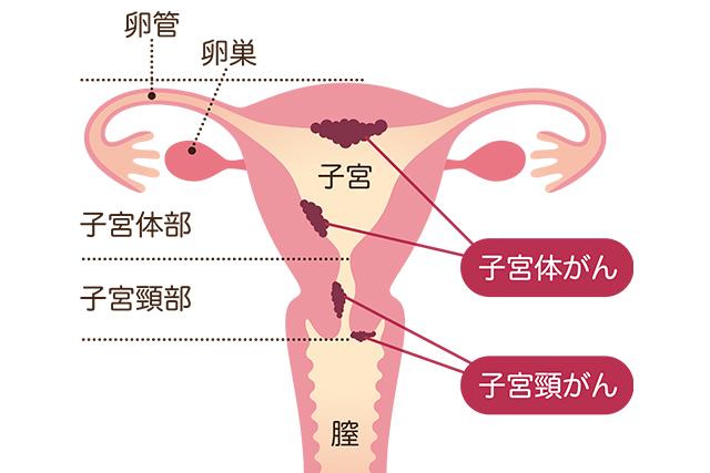 癌 検診 子宮