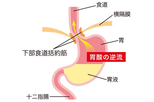 胃食道逆流症のイメージ