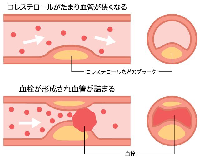 動脈硬化のイメージ